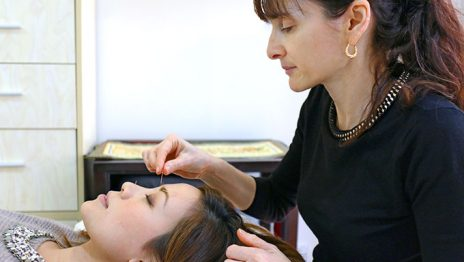 Facial rejuvenation acupuncture
