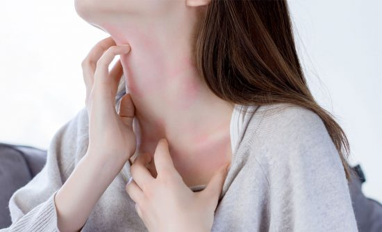 Eczema, psoriasis, acne and skin rashes: why do my skin issues keep coming back?