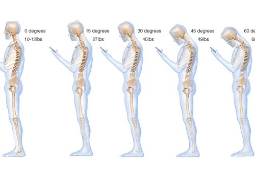 Are Smartphones Ruining Your Posture?