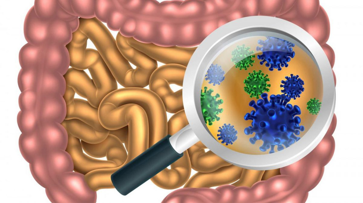 A New Approach to IBS Treatment: Addressing Small Intestine