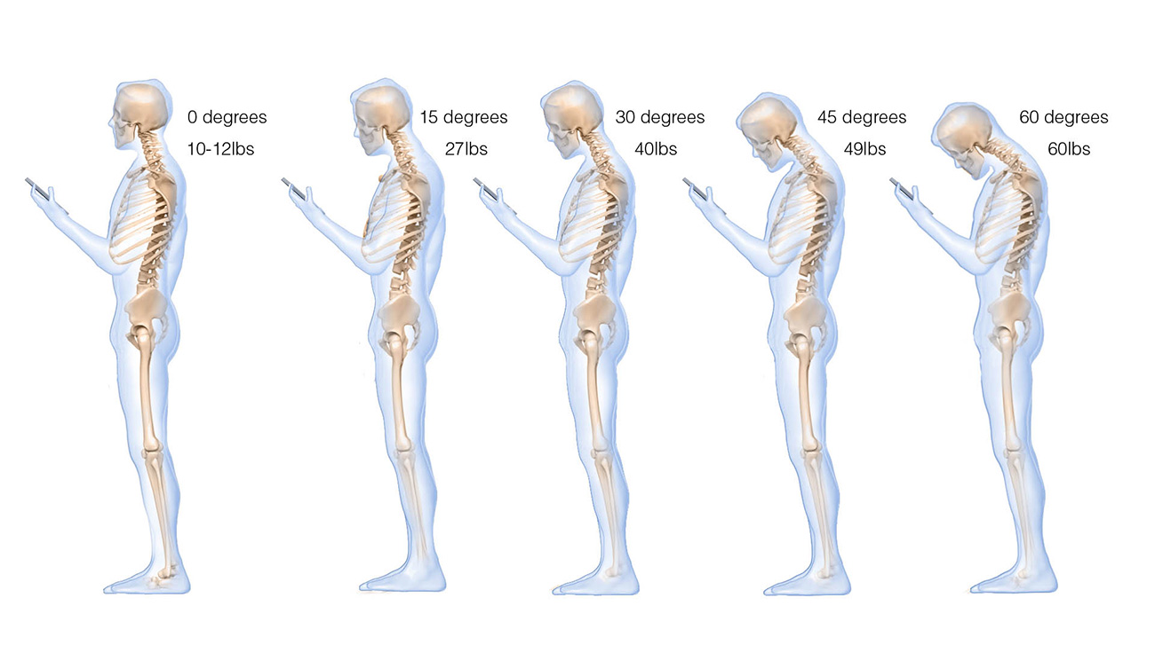 Assessment of Stresses in the Cervical Spine Caused by Posture and Position of the Head, Dr K.Hansraj